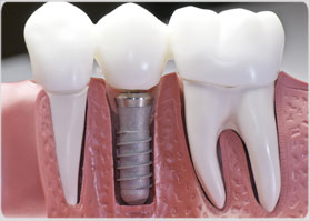 dental-implants-miami