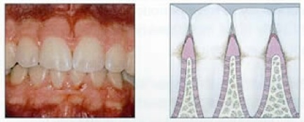 periodontal treatment in florida